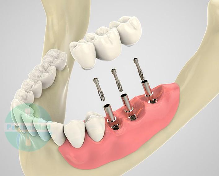 виды имплантации зубов - фото