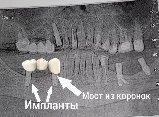 мост из коронок на импланты
