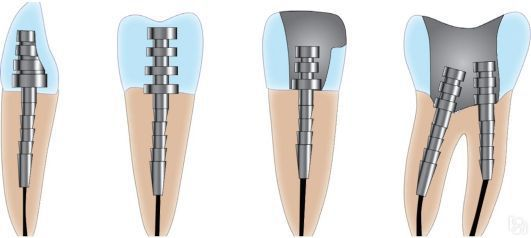 Восстановление и период службы депульпированного зуба