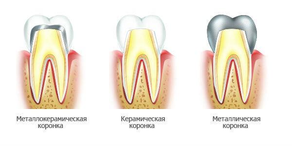 несъемные зубные коронки