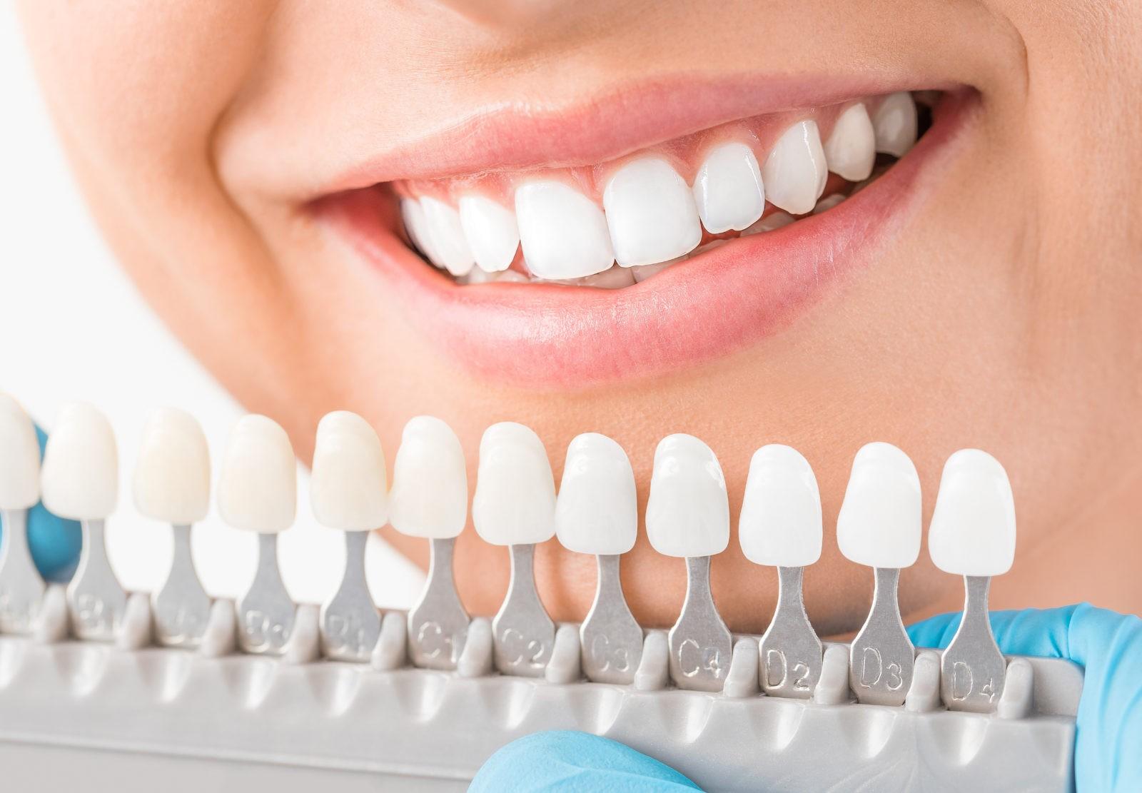 какие материалы используются для зубных протезов