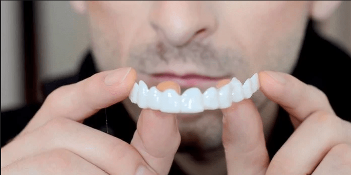 установка передних зубов - как