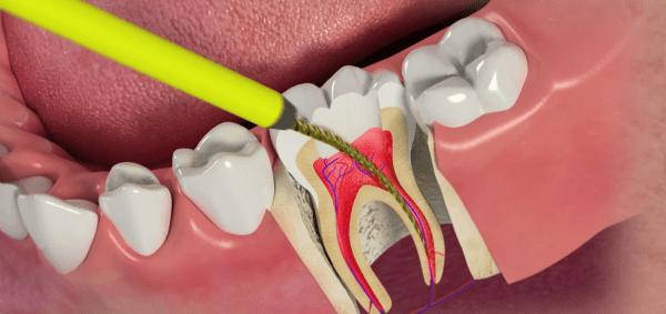 https://expertdent.net/protezirovanie-zubov/depulpirovanie-zuba-pered-protezirovaniem