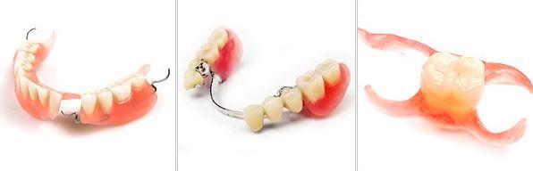 разновидности протезов на зубы