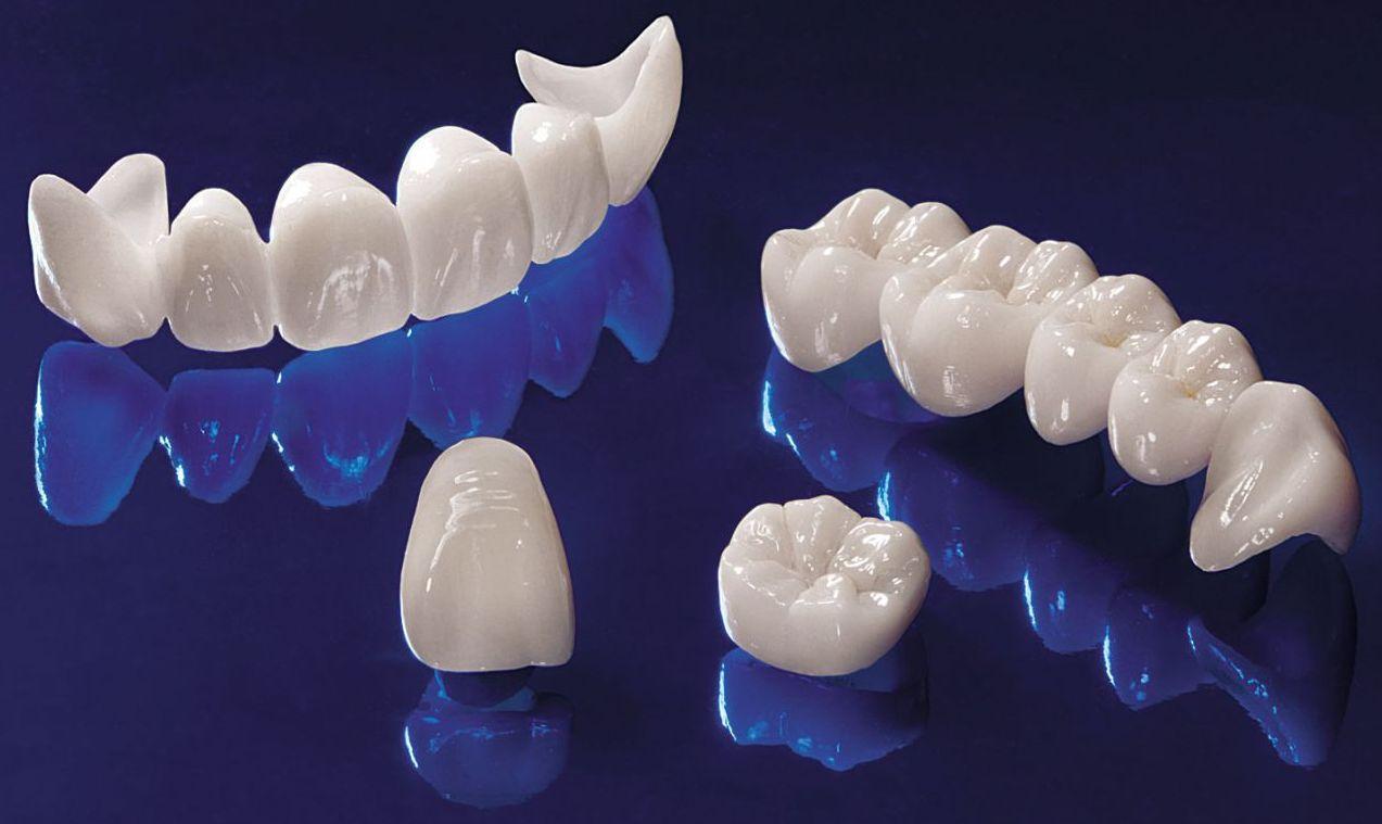 фото зубных коронок цирконий