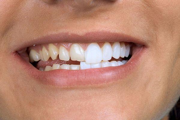 наращивание зубов с помощью виниров