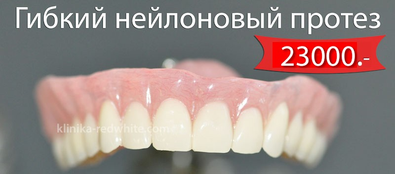 нейлоновый протез на верхнюю челюсть