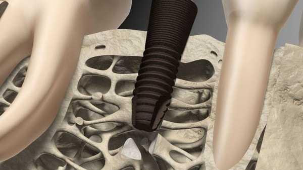 интеграция импланта