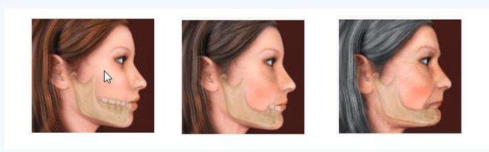 изменение лица при отсутствии зубов