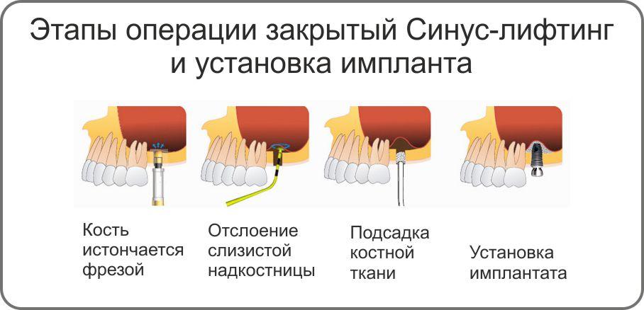 синус-лифтинг при имплантации