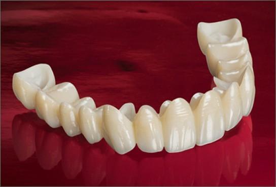 зубной мост фото смотреть