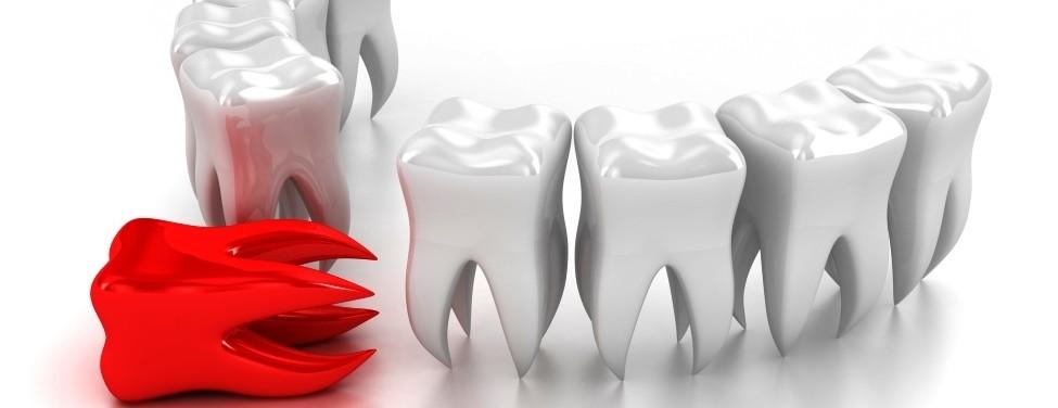 какие бывают Виды временных протезов на зубы