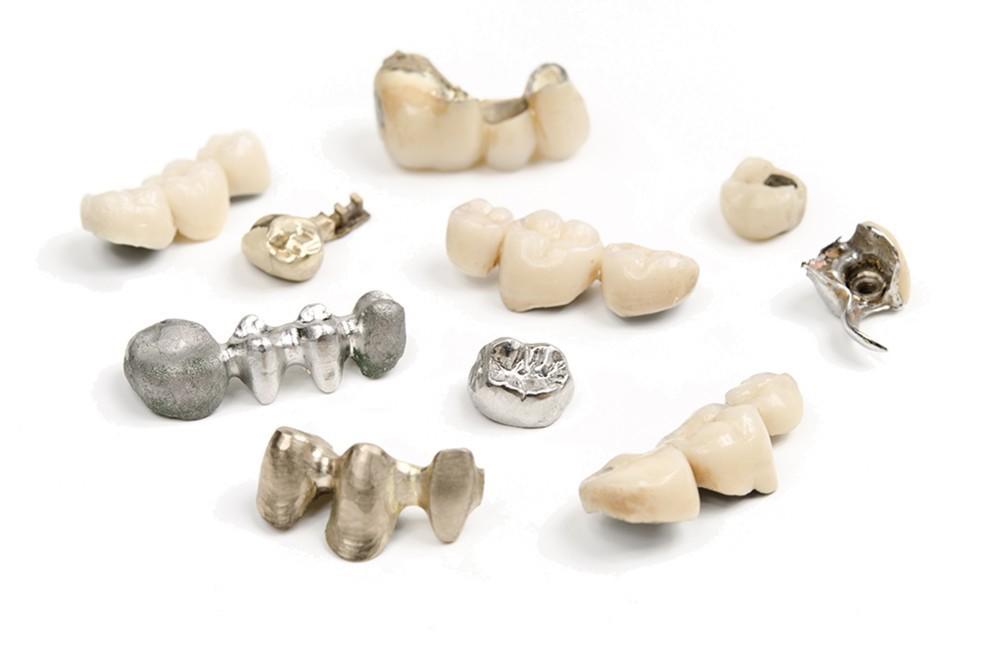 гарантия на зубные коронки
