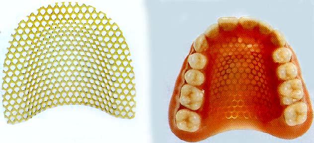 усиление протеза армирующей сеткой при ремонте
