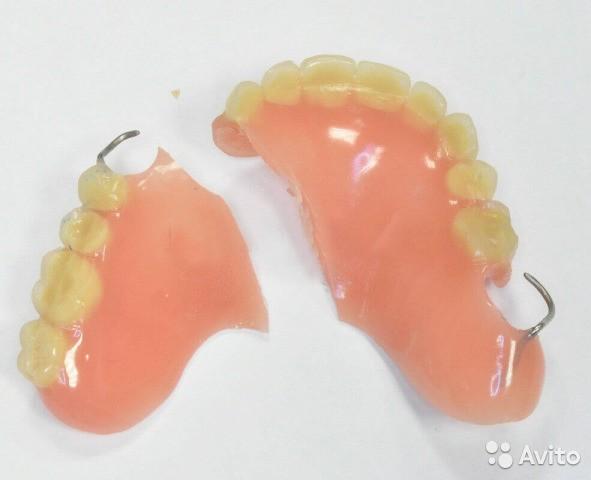 ремонт зубных протезов по гарантии