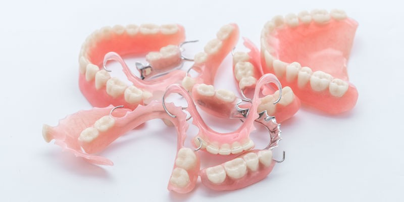 виды протезов в стоматологии сегодня