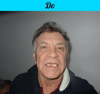 фото - До и после частичного протезирования