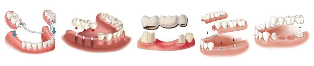 гарантии на различные виды зубных протезов