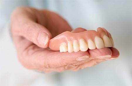 покрывные конструкции для зубов