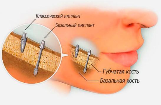 Базальная имплантация фото