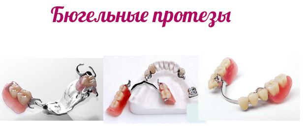 Бюгельные протезы при частичном протезировании