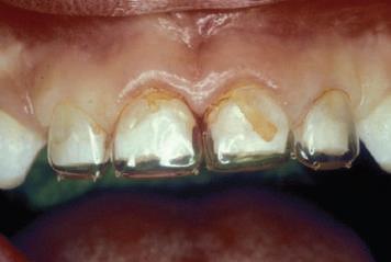 Strip коронки на фронтальные зубы