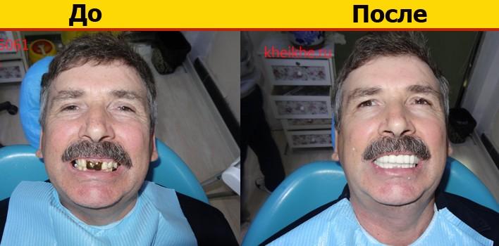 фото - до и после установки протезов