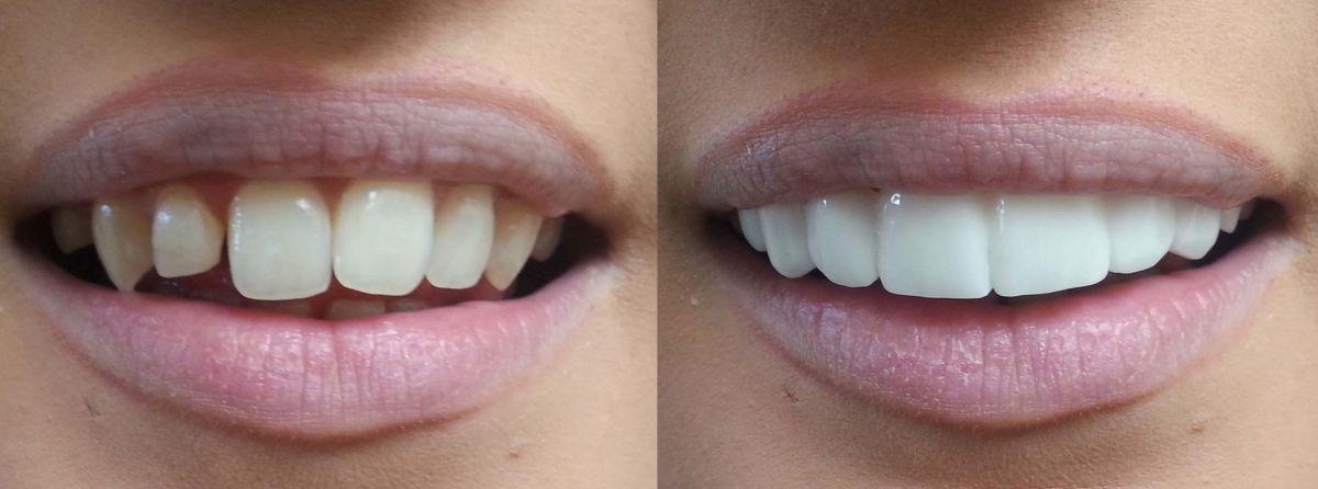 фото - до и после протезирования силиконом