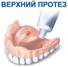 крепление верхнего протеза к челюсти