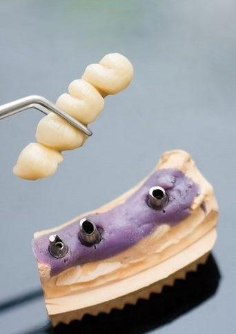 фото временного протеза