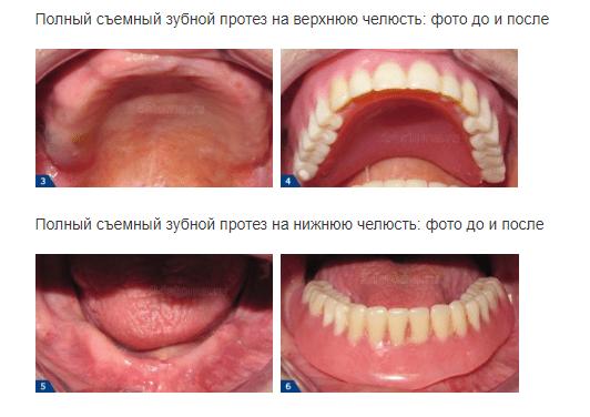 зубные протезы при тотальном протезировании