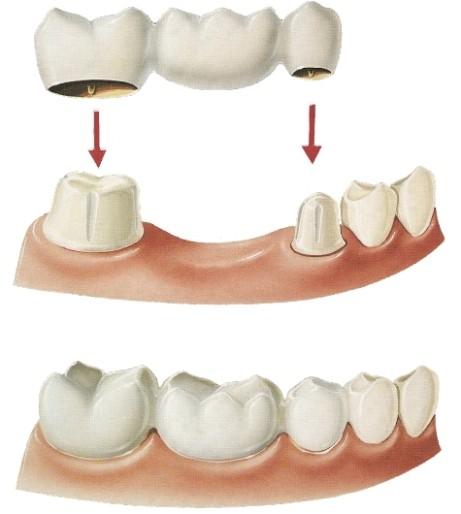 установка моста после удаления зубов