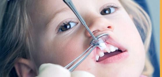 чем грозит ранняя потеря зубов у детей