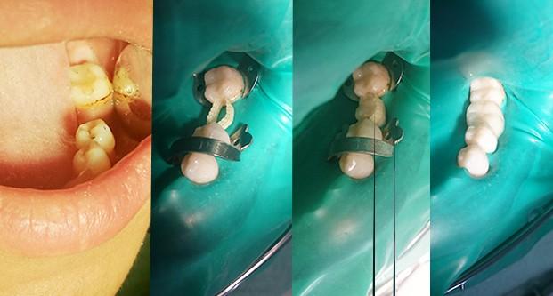 этапы установки адгезивного протеза