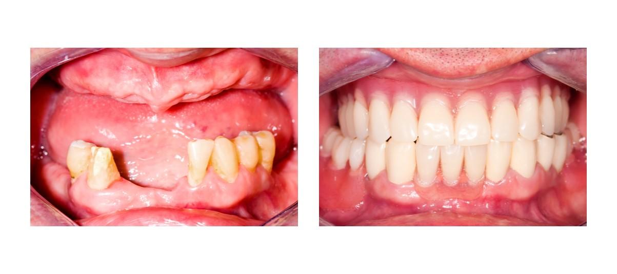 протезирование квадротти до и после
