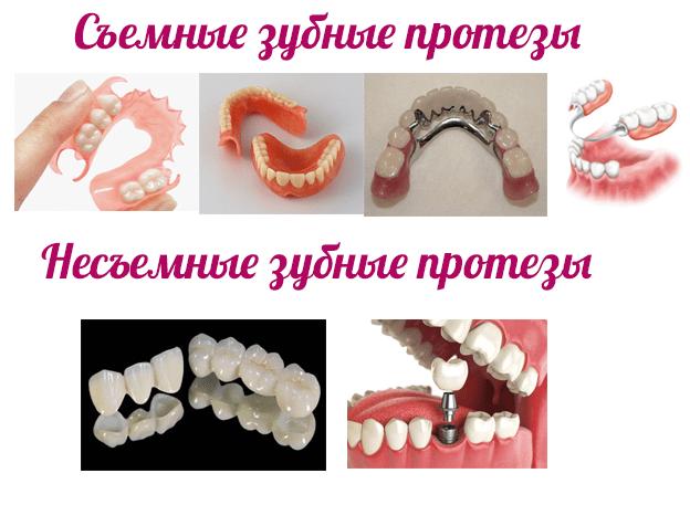 плюсы и минусы съемных и несъемных зубных протезов