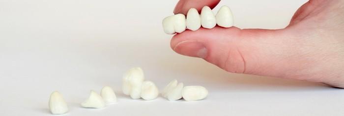 фотографии зубных коронок