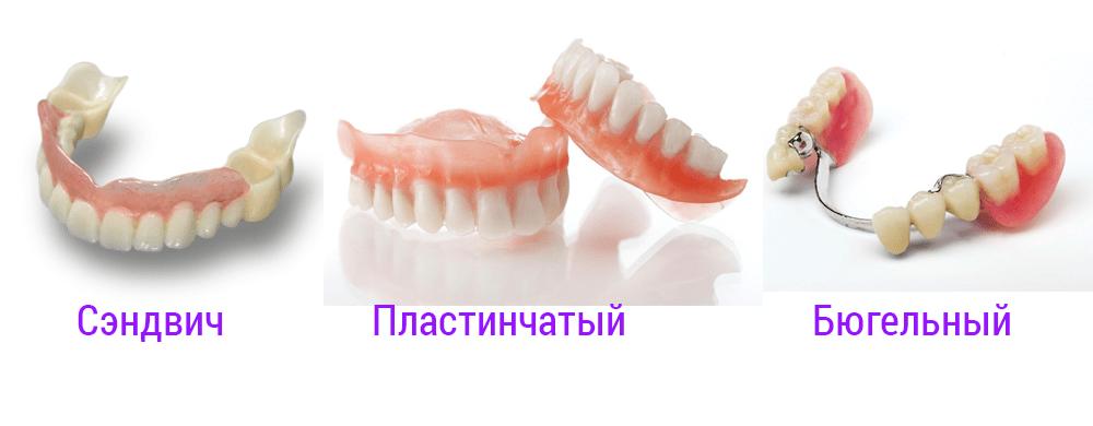 Какие бывают виды протезов из пластмасса