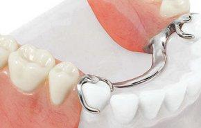 титановые крючки на зубы