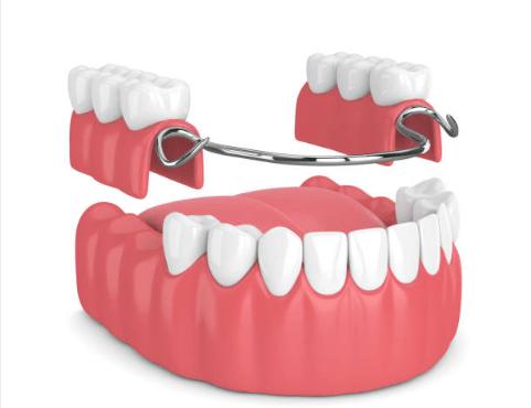 кламмерная фиксация зубного протеза