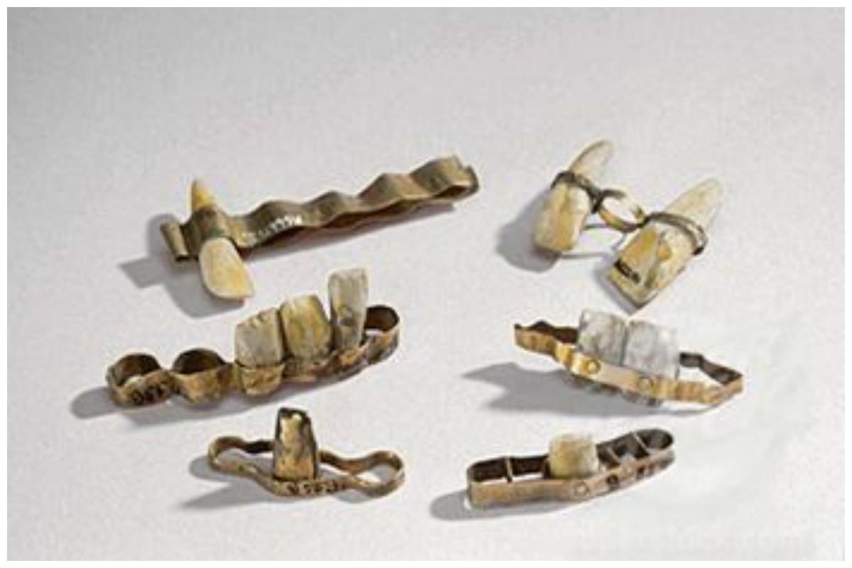 первые зубные протезы - фото