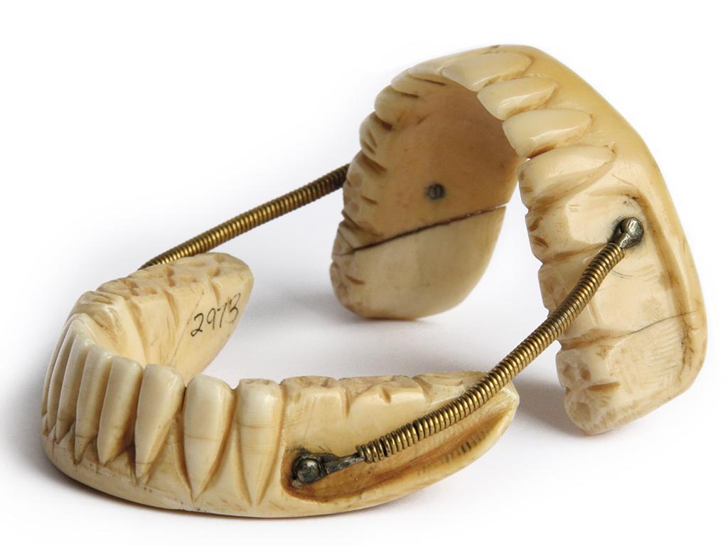 первые съёмные зубные протезы