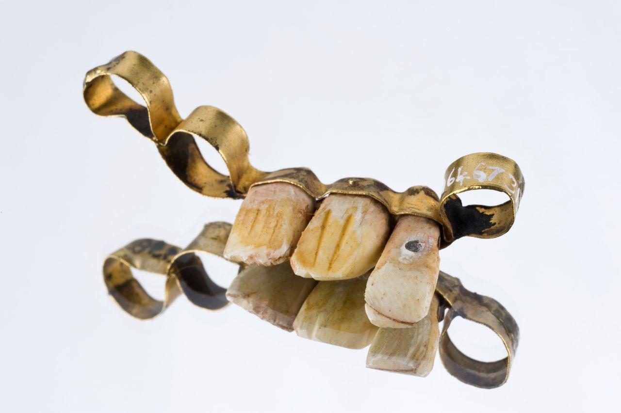 фото древнего зубного протеза