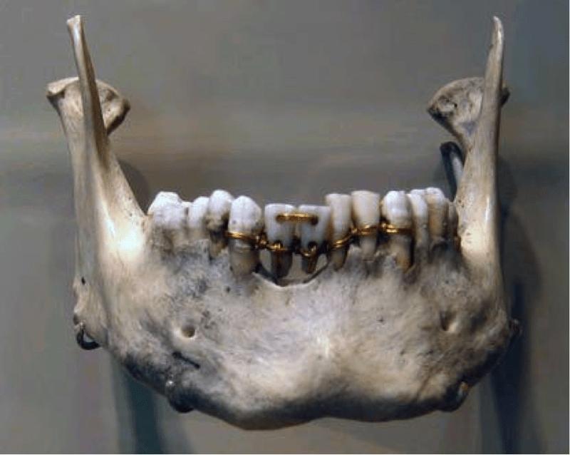 фото древних протезов передних зубов