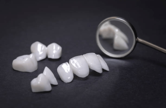 металлоплатсиковые коронки на BOI импланты