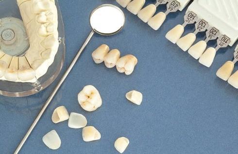 виды зубных коронок фото