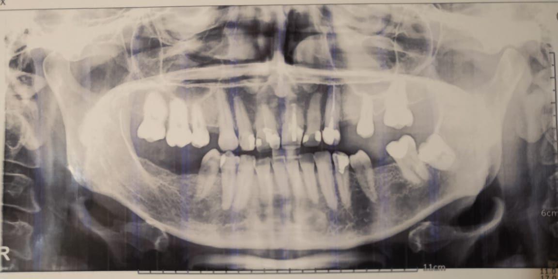 снимок панорманый для составления плана протезирования зубов