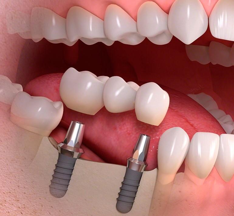как протезируют зубы на имплантах