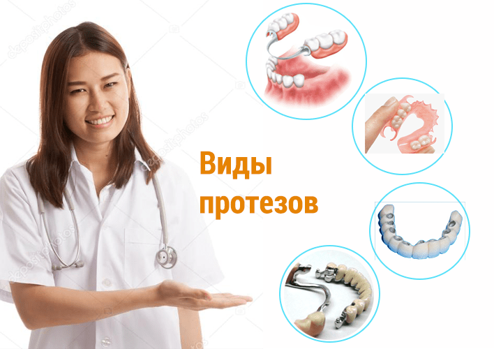 виды зубных протезов и их цены