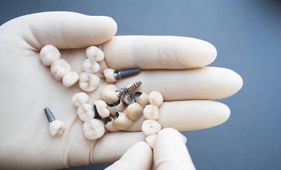 временные коронки и импланты